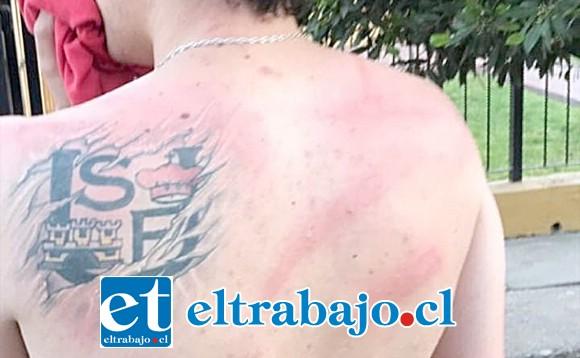 Francisco Ibaceta, operado recientemente de la espalda, recibió 10 golpes de luma que quedaron claramente marcados en su cuerpo, denunciando como una brutalidad el actuar de Carabineros.