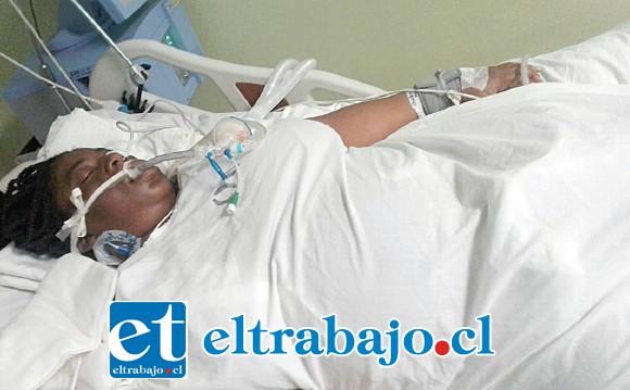 ¿QUIÉN LE AUXILIARÁ? Así permanece la madre haitiana Sherling Lucien, desde que fue llevada al San Camilo y operada por cesárea para tener a su bebé. No puede hablar, caminar ni moverse.