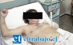 Alejandro Becerra perdióperdió uno de sus brazos en una faena minera de División Andina de Codelco, en abril de 2015. (Referencial)