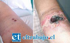 Los primeros días después de la mordedura de araña de rincón, don Rubén lucía pequeñas marcas en su brazo. Actualmente el paciente de 59 años de edad se encuentra levemente mejor, aunque la lesión en su brazo ha ido evolucionando.