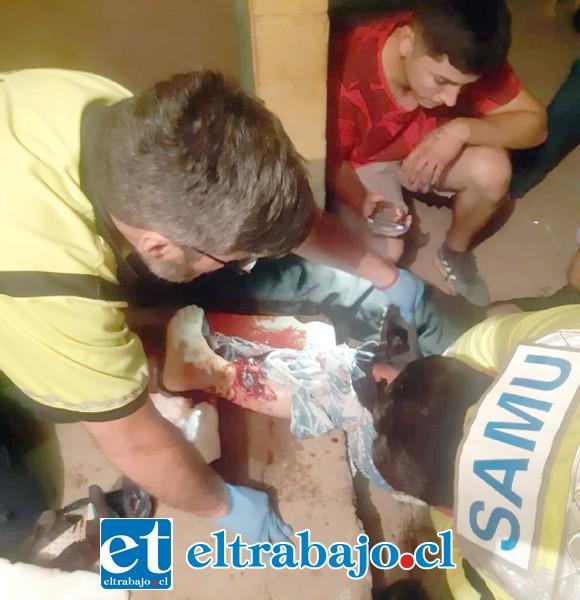 Con una fractura expuesta resultó 'El Cota' tras el impacto balístico en su pierna.