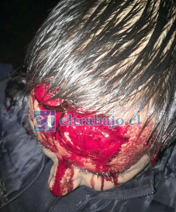 Un enorme corte de unos 15 centímetros en la frente le provocaron los delincuentes a la víctima.
