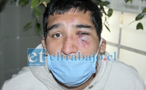 Así lucía ayer el rostro de Sebastián, lo que ya está siendo investigado por el Cosam San Felipe.