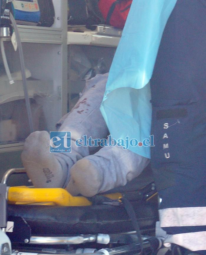 MUY MAL HERIDO.- Las cámaras de Diario El Trabajo captan el pantalón ensangrentado del motociclista mientras era atendido por personal del SAMU.